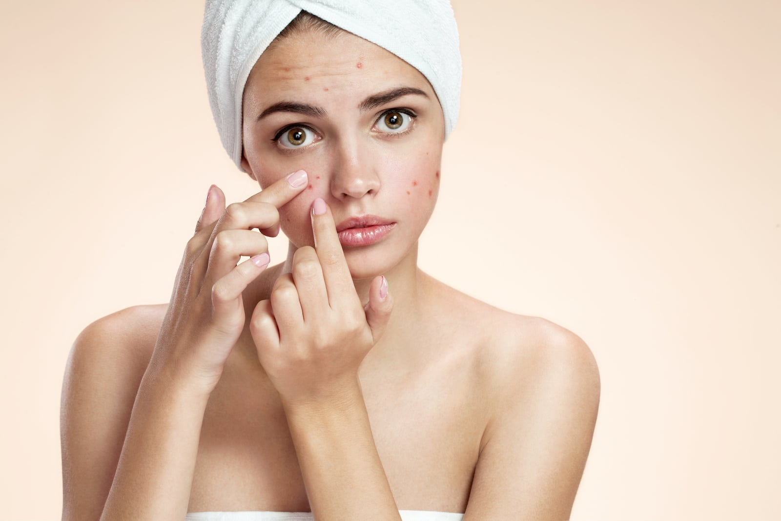 Woman with acne spot pimple