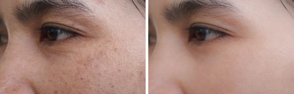 Image before and after spot melasma pigmentation facial