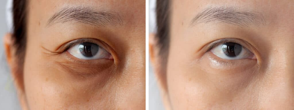 Under eyes with problems of dark circles before and after