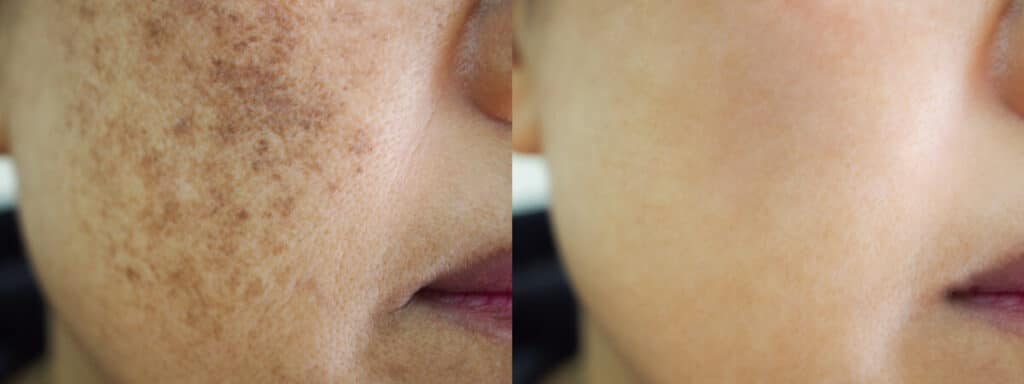 Image before and after spot melasma pigmentation facial treatment.