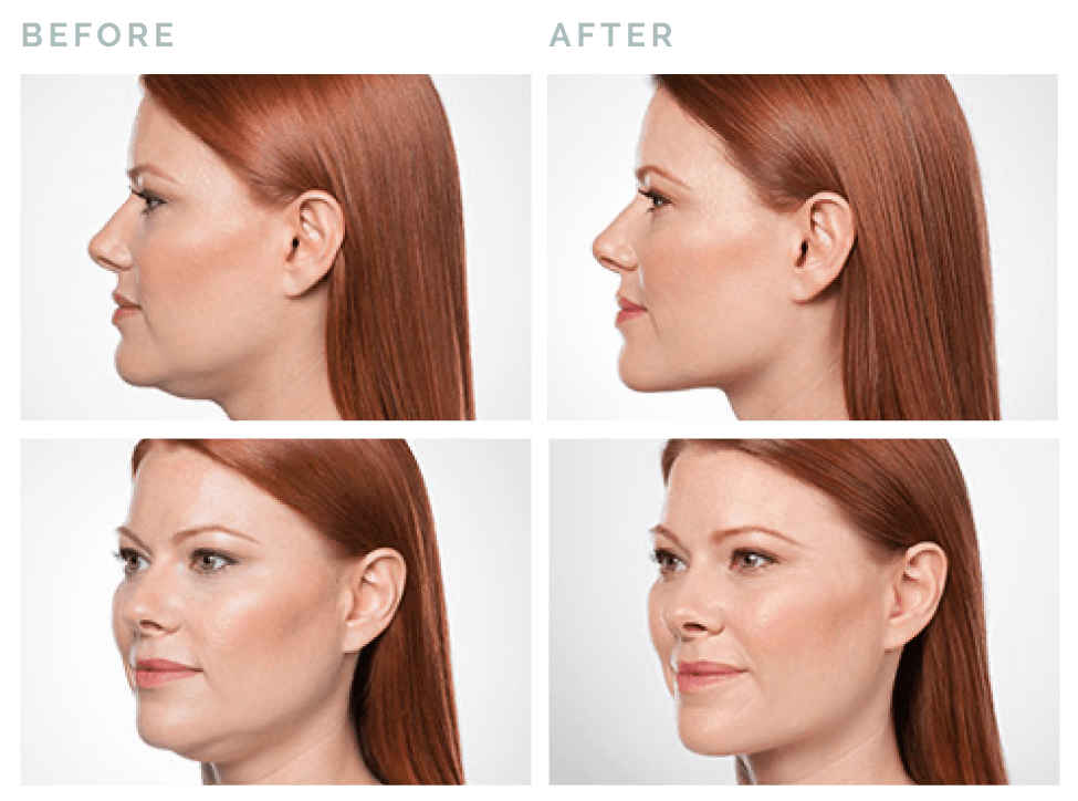 Before and After Belkyra Treatment