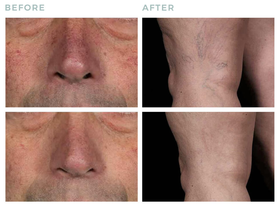 Vein laser treatment before and after
