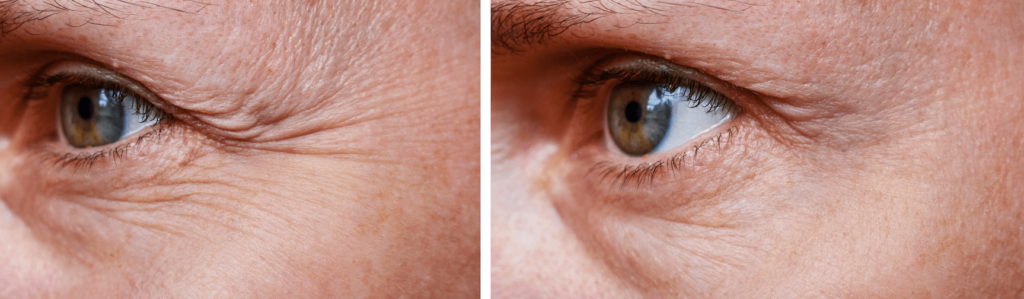 Procedure for the rejuvenation of wrinkles around the eyes